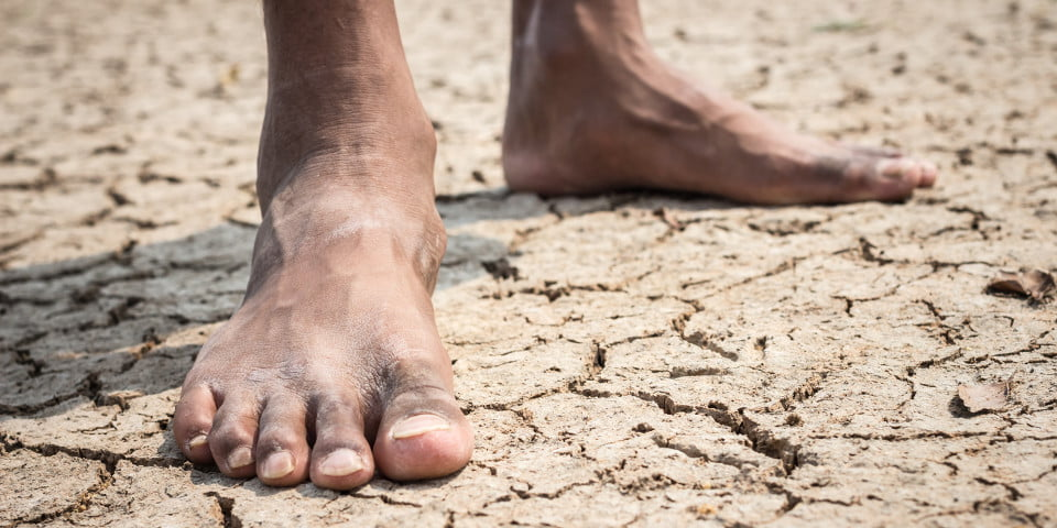 Indigenous to get support for diabetes-related foot problems
