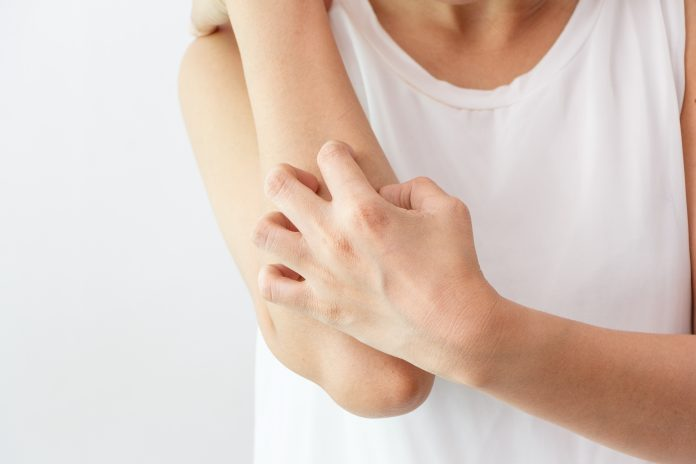 Winter or summer, which is worse for eczema?