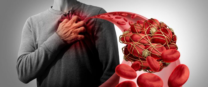 Fatal blood clotting and the COVID-19 connection